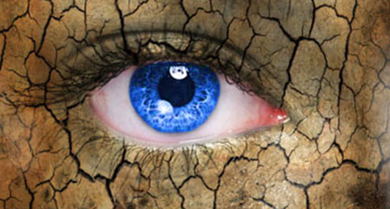 Do you have Dry Eye Syndrome?